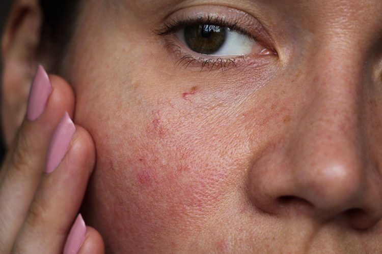 Woman with uneven Skin Texture | Marin Medical Aesthetics