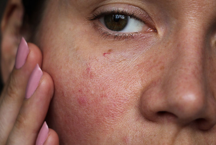 Woman with uneven Skin Texture   Marin Medical Aesthetics