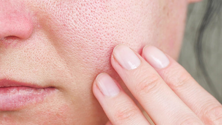 enlarged pores can be cured with skincare | Marin Medical Aesthetics San Rafael
